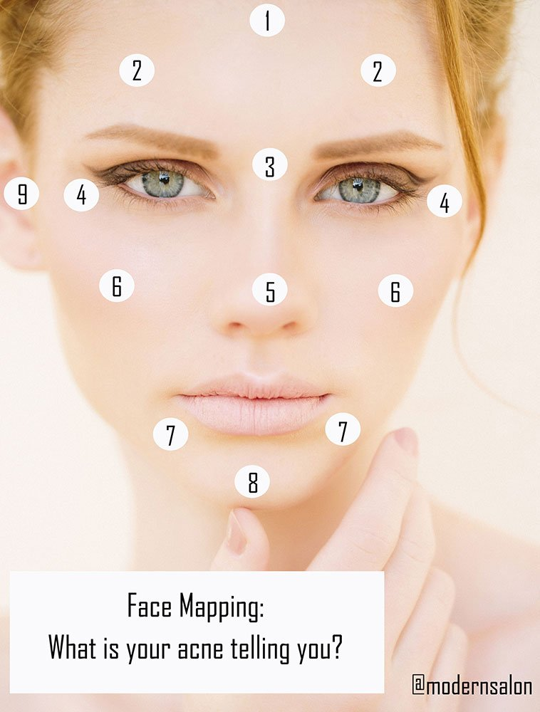 Face Mapping What Are Your Acne Breakouts Telling You Career
