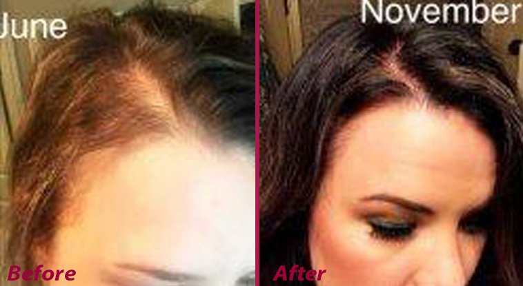 "<p><strong>These before and after case studies were provided by Hair Restoration Laboratories to demonstrate product results. ""Does it work?"" says one customer. ""You decide!""</strong></p>"