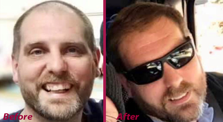 """<p><strong>These before and after case studies were provided by Hair Restoration Laboratories to demonstrate product results. """"Does it work?"""" says one customer. """"You decide!""""</strong></p>"""