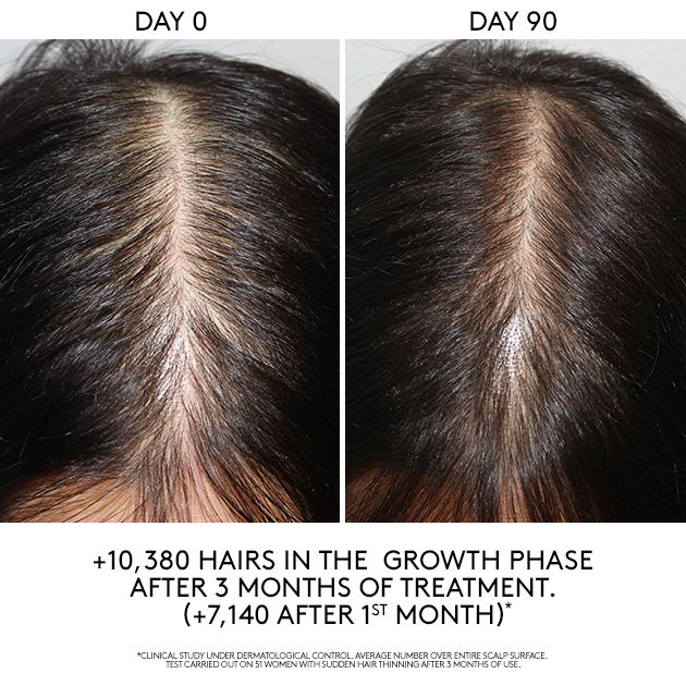 <p><strong>Hair loss treatments are scientifically grounded and include tangible studies like this one from René Furterer.</strong></p>