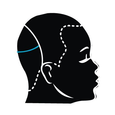 SECTIONING: Take two slight diagonal-back partings from the radial part to an inch above the occipital bone, on the left and right side of the head. Create a profile parting from the high point of the head following the natural growth pattern to the defined sub-section.
