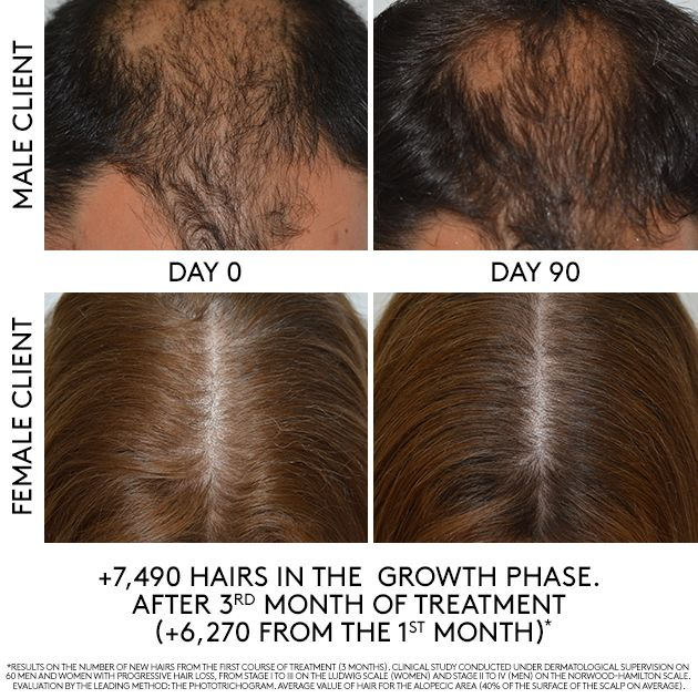 <strong>Men and women alike benefit from hair loss treatments.</strong>