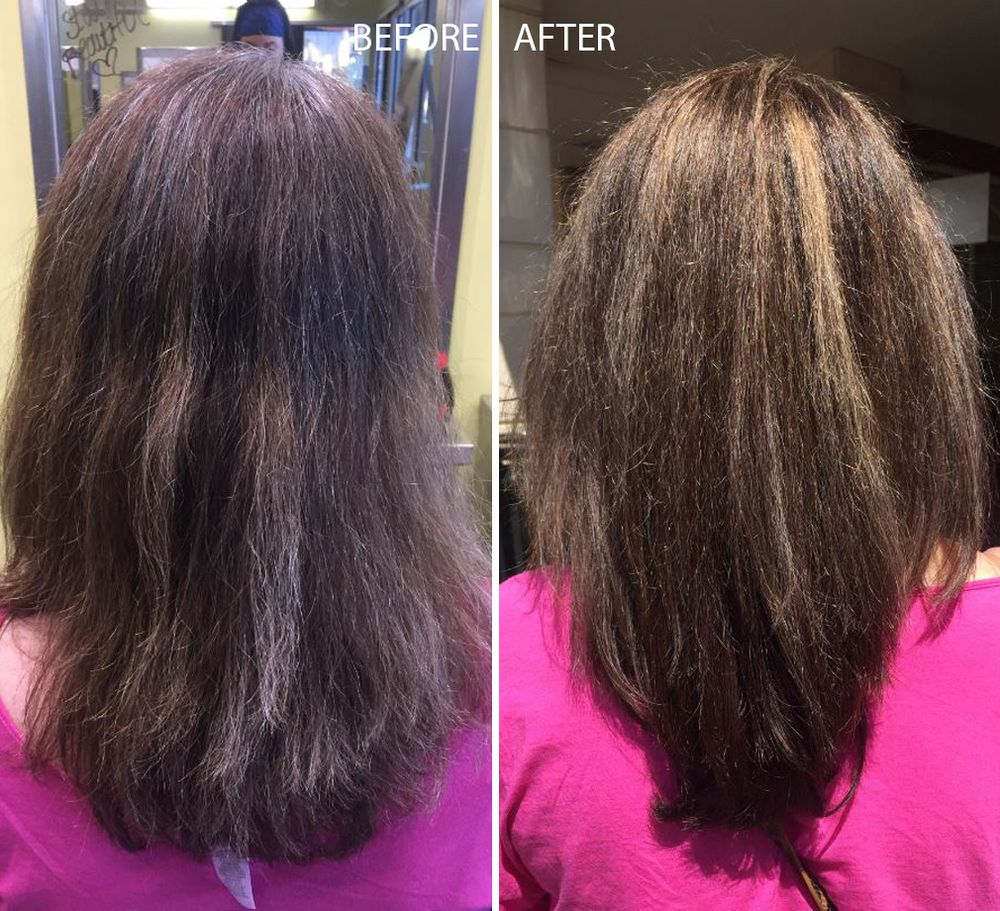From left: Before and After (Back of head)