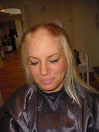 A client suffering from Trichotillomania.