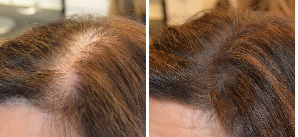 <p>Hair loss in women often manifests as a widening of the part (left). To the right is the same client after using Hair Restoration Laboratories Hair Restore Shampoo and Conditioner.</p>