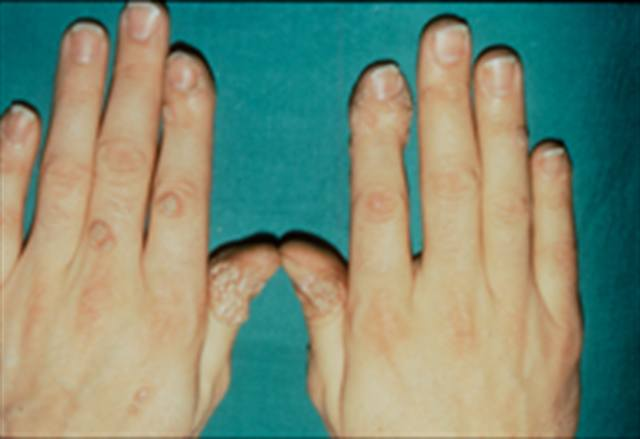 Getting Rid Of Warts Health Nails Magazine