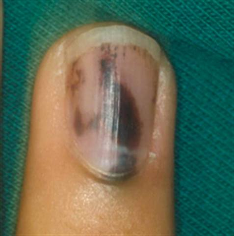 how to tell if you ve broken your finger