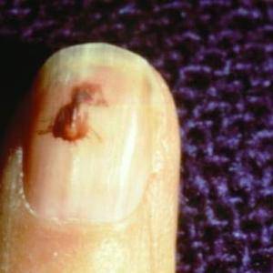 What Is a Splinter Hemorrhage?