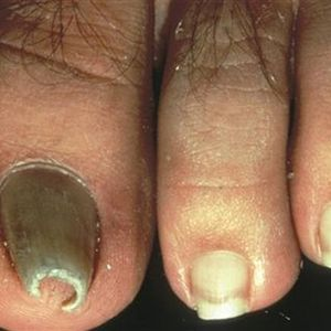 What Are Pincer Nails?