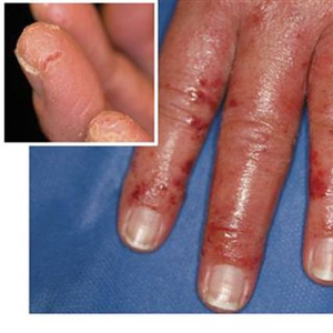 What Is Allergic Contact Dermatitis?