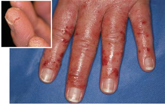 What Is Allergic Contact Dermatitis? - Health - NAILS Magazine