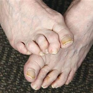What Is Hammertoe?