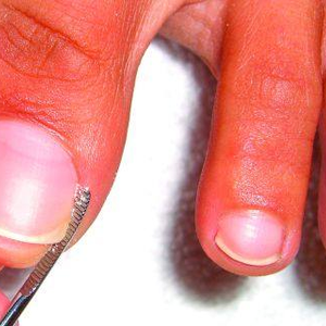 You're Never Alone When a Nail's Ingrown