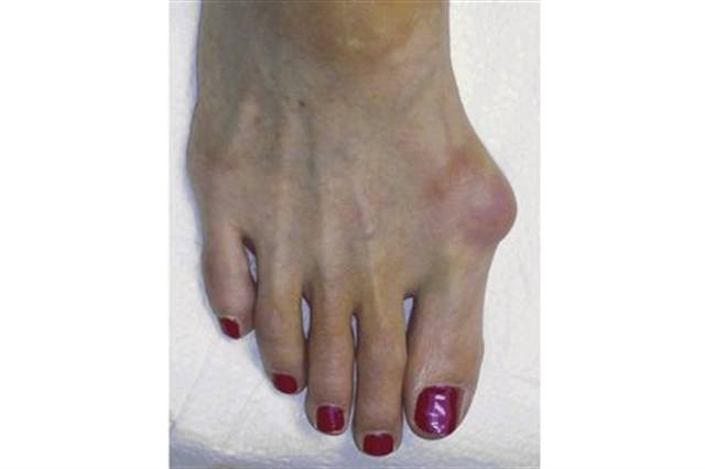 what are neuromas  - health