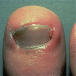 What Are Ingrown Nails?