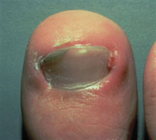 What Are Ingrown Nails Health Nails Magazine