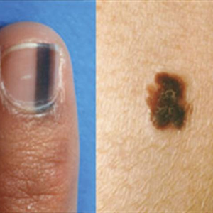 What Is Skin Cancer?