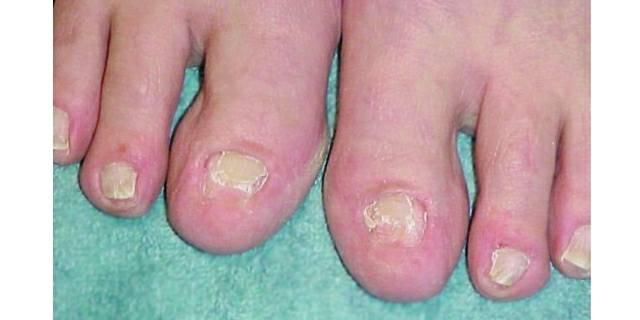 Reconstructing damaged toenails technique nails magazine for Acrylic toe nails salon
