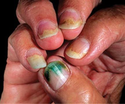 Household Bacteria That Thrives In Many Environments Including Water And Moist Soil It Is The Main Culprit Of Unwelcome Phenomenon Known To Nail