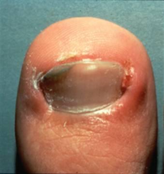 how to cut out an ingrown toenail