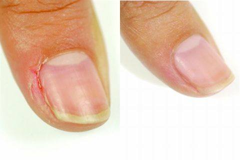 Surrounding Your Nail