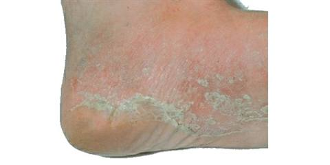<p>In more advanced cases, symptoms appear on the soles of the feet and the heels.</p>