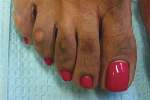 dark skin on toes