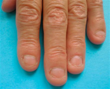 Onychophagy Is A Medical Term For Nails That Have Been Bitten Enough To Become Deformed
