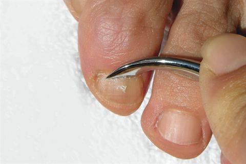 a Naturally Curved Cuticle