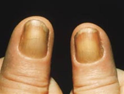 It S Called Yellow Nail Syndrome Yns And While Rare Could Reveal A Lot More About Client Than Her Vices