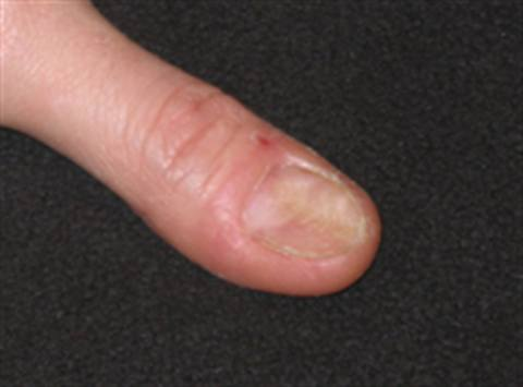 N A Deformity In The Nail Bed That Results Concave Indent Of Plate Causing Outer To Turn Out Also Called Spoon What It Is