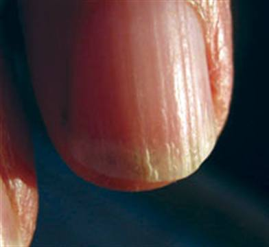 What Is Onychorrhexis? - Health - NAILS Magazine
