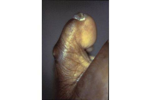 how to manually stretch a hammer toe