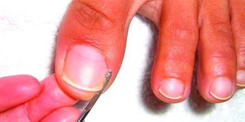 You\'re Never Alone When a Nail\'s Ingrown - Technique - NAILS Magazine