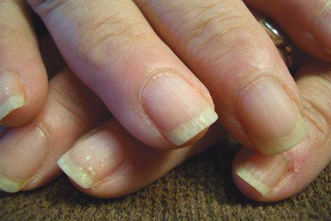 Dry Brittle Nails Can Show Vertical Ridging Flaking At The Free Edge As Well White Spots That Be Similar To Dandruff