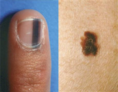 Skin Cancer: Worrisome even for Skin of Color