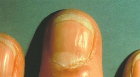 Possible Causes Of Horizontal Ridges Are Beaux Lines And Habit Tic Disorder Can Also Occur From Abnormalities The Cuticle Area