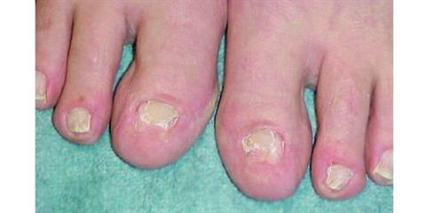Hiding Them By Avoiding Sandals Beaches And Other Enjoyable Barefoot Ctivities But A Quick Toenail Enhancement Can Completely Change Their Outlook On