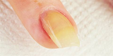 Why Do My Acrylic Nails Turn Yellow By The Time Clients Come Back For Their Fill Technique Magazine