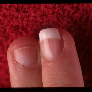 This nail biter's finger is transformed. The shape of the finished nail  draws attention away...