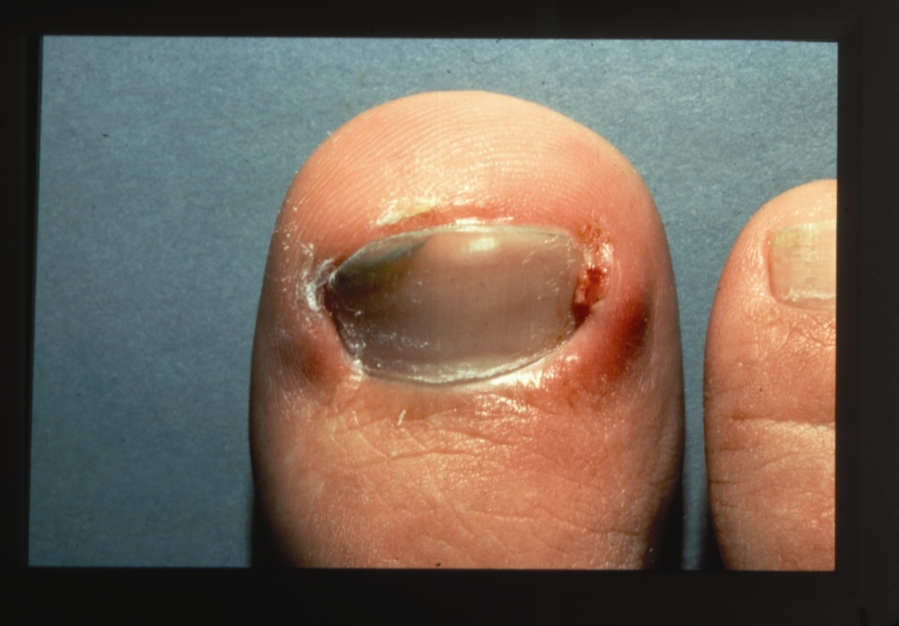 onychocryptosis (ingrown nails)