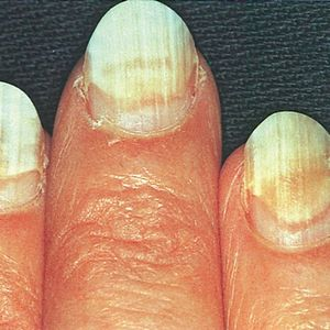When Nails Separate