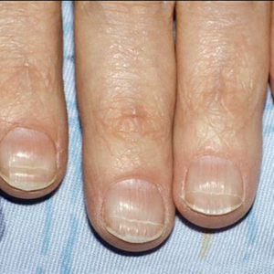 Beau's lines: a ridged or grooved line that runs horizontally across the nail