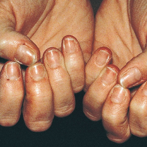 [on-e-ko-'reck-ses] or [on-e-ko-'skiz-e-ya] nails on the hands and feet that break and peel...