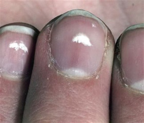 Leukonychia Encyclopedia Nails Magazine