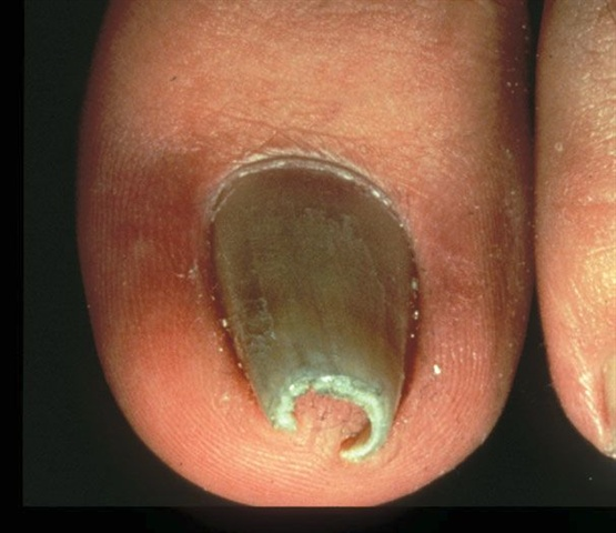 pincer nails