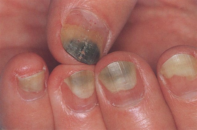 Pseudomonas Encyclopedia Nails Magazine