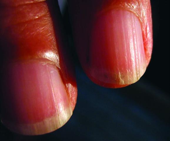 Лечим ногти и трещины возле них