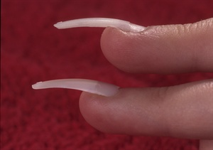The tip you see on the bottom is untailored, and covers the entire nail.  It also puts pressure on, the puffy skin; notice how it's cutting into  the skin at the tip of the finger. The top tip has been modified in the  contact area so that it covers not more than ore-half of the nail plate.  The extension of the tip has been carved out with a file so that it  sad-dles the puffy skin without exerting any pressure.