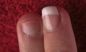 This nail biter's finger is transformed. The shape of the finished nail  draws attention away from the puffiness, and the length, which goes just  to the tip of the finger, is ideal. Any longer than this would probably  result in service breakdown